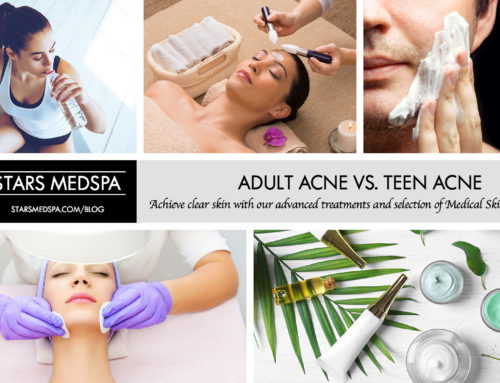 Adult Acne vs. Teen Acne