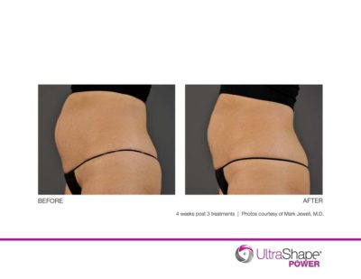 ultrashape power before and after